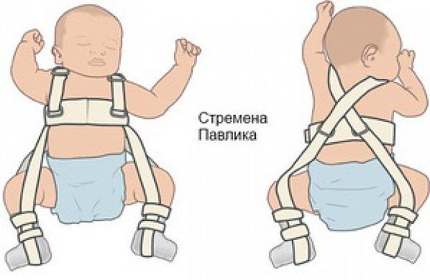 У ребенка выскакивает тазобедренный сустав капсулит плечевого сустава чем лечить